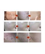 MEIKING Face Mask Skin Care Whitening Acne Treatment Remove Blackheads, ... - $34.95