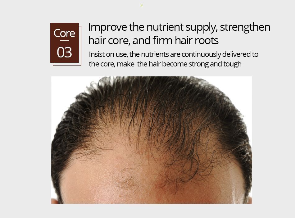 Hair Growth Fluid Nourish Hairs Roots Hair Thick and Shiny Prevent Hair Loss Men