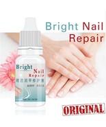 Nail Treatment Liquid Nourishment Oil Antifungal Nails Bright Toe Fungus... - $7.95