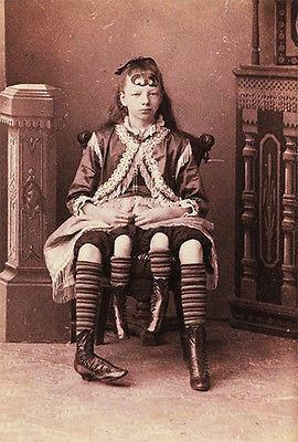 Primary image for 1900's Carnival Sideshow - 4 Legged Girl - Postcard Poster