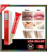 Whitening Pink Red Cream Vaginal Lips Intimate Private Parts Dark Nipple... - $9.89