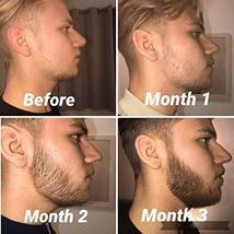 Beard Derma Roller for Men's Beard Growth + Beard Serum Oil + Beard Balm Wax + C image 4