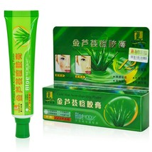 Unisex adult skin care anti acne aloe vera ointment acne removal unguent mg thumb200