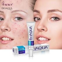 BIOAQUA Skin Care Acne Face Removal Cream Cleanser Spots Scar Blemish Ma... - $5.50