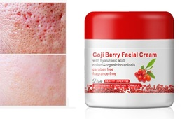 car Remover Cream Helps Fade Dark Marks Acne Scars & Blemishes 4oz - $17.80