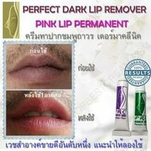 *Set Of Lightening Bleaching Fresh Pink Lips Cream Treatment Remove Dark... - $32.55