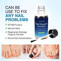 Amada Pure Toenail Fungus Treatment, Nail Fungus Treatment, Finger Fungus Stop,  image 3
