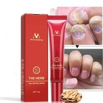 Nail Treatment Anti-Fungal Repair Cream Herbal Toe Nail Care Fungus Trea... - $8.51