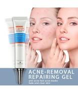 Acne Removal Repairing Gel Acne Scar Remover Skin Care Facial Face Spots... - $9.85