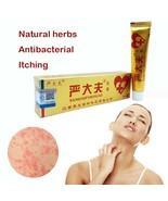 Chinese medical Cream  zudaifu Hot selling skin care yiganerjing Psorias... - $9.20