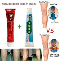 Vasculitis Treatment Cream Ointment Varicose Veins Phlebitis Spider Vein... - $12.51+
