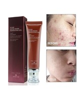 Scar Acne Mark Removing Gel TCM Blackhead Treatment Whitening Skin Care ... - $9.85