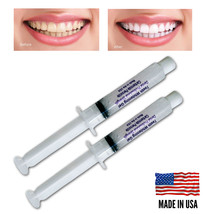Always White Teeth Whitening 2 Syringes 35% Gel Professional Tooth Bleac... - $8.95