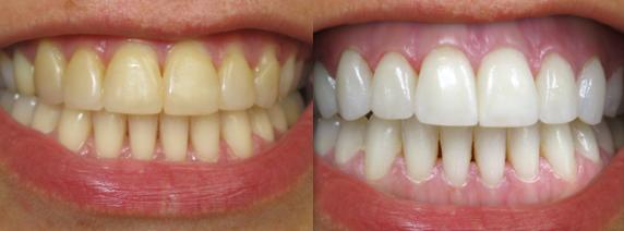 Always White 10 Syringes 35% Carbamide Peroxide Gel Teeth Whitening Kit - USA -
