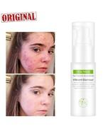 Tea Tree Anti-Acne Serum Acne Scar Treatment Print Anti-wrinkle Pores Es... - $9.85