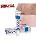 Face Cream Whitening Skin Care Anti Acne Treatment Cream Oil Control Sca... - $7.87