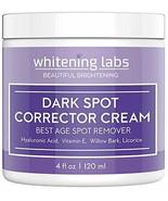 Dark Spot Corrector Face Body Cream. Spot Fade Remover Diminisher for Me... - $29.50