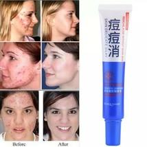 Acne Treatment Skin Care Cleaning Cream Blackhead Type Moisturizing Face... - $35.00