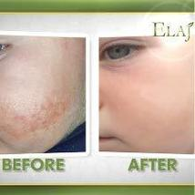 Elaj Face and Body Emollient Lotion Cream for Eczema Psoriasis Rosacea Coldsores image 8