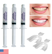 3 Professional 35% Teeth Whitening Gel Syringes + Two Thermoforming Trays - USA  - $9.95
