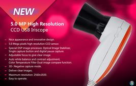 High Resolution CCD USB Iriscope Eye Camera - 5.0MP Iriscope with 30X Iris Lens - $234.50