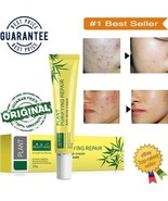 Natural Plant Face Cream Cleaning Repair Anti Acne Skin Care Pimple Trea... - $6.88