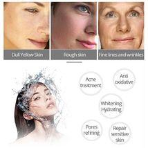 Crocodile Repair Face Cream Acne Scar Removal Whitening Spots Stretch Treatment image 4