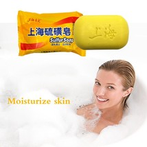 85GShanghai sulfur soap Clear skin oil-control acne blackhead remover An... - $11.69