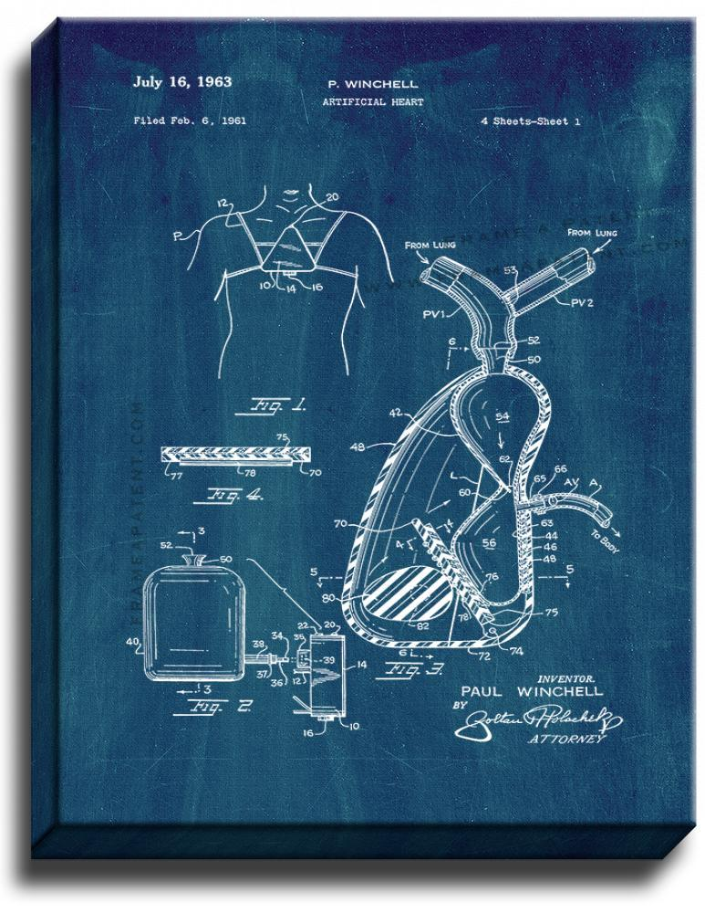 Primary image for Artificial Heart Patent Print Midnight Blue on Canvas