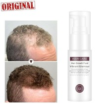 Hair Growth Fluid Nourish Hairs Roots Hair Thick and Shiny Prevent Hair ... - $17.47