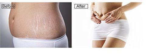 Maywood Creek Essentials Body & Belly Butter Stretch Removal Mark & Scar Cream