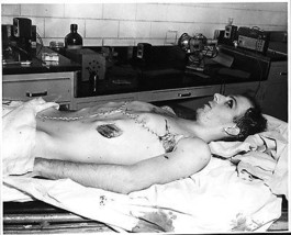 Lee Harvey Oswald's body after it arrived at the funeral home  - $7.18