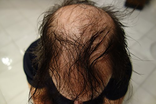 Hair Building Fibers Black 25 Grams Refill Your Existing Bottle. Highest Grade F