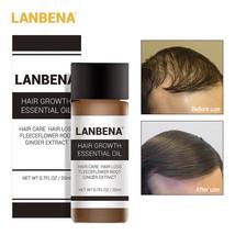LANBENA 20ml Hair Growth Essence Fast Powerful Hair Care Essential Oil Liquid - $17.00