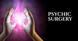 Psychic Surgery - $99,999,999.99