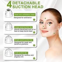 Blackhead Remover Pore Vacuum Cleaner - Blackhead Extractor, Blackhead Vacuum US image 4
