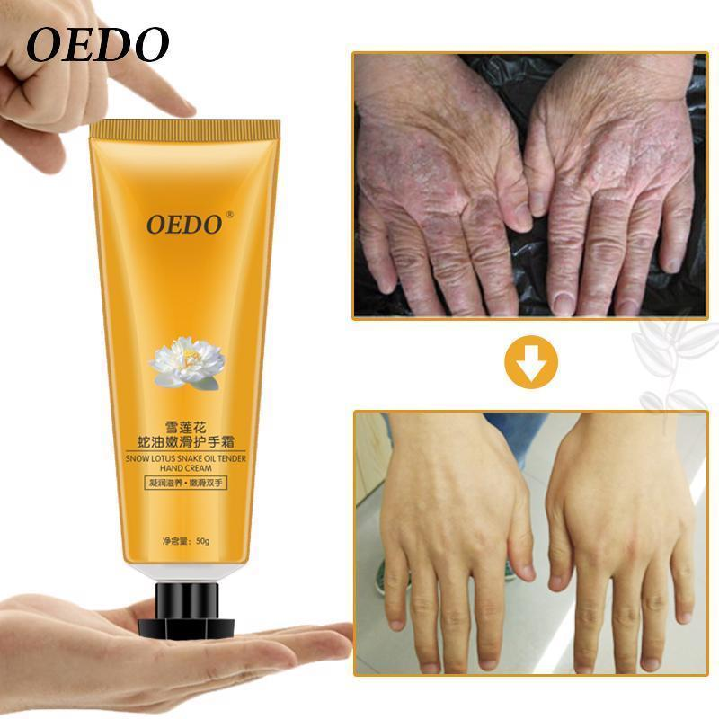 Primary image for Snow Lotus Snake Oil Hand Cream Skin Care Moisturizing Nourishing Antibacterial