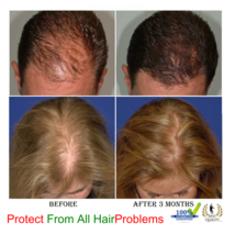 Best Hair Loss Treatment For Men And Women Hair Regrowth Naturally All Herbal - $23.21