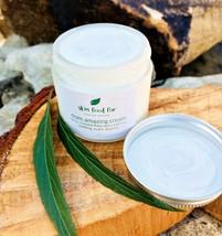 MSM Cream Acne Rosacea Psoriasis Eczema, Skin Opti-msm acne scars wrinkl... - $12.95