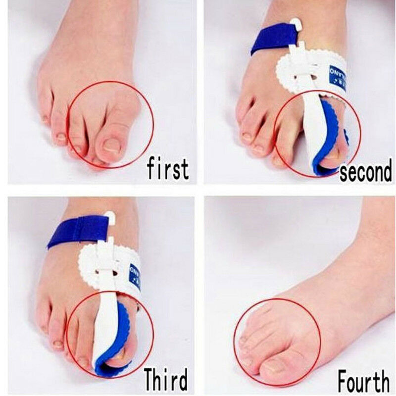 Primary image for Beetle-crusher Bone Ectropion Toes Hallux Valgus Corrector Foot Straightener