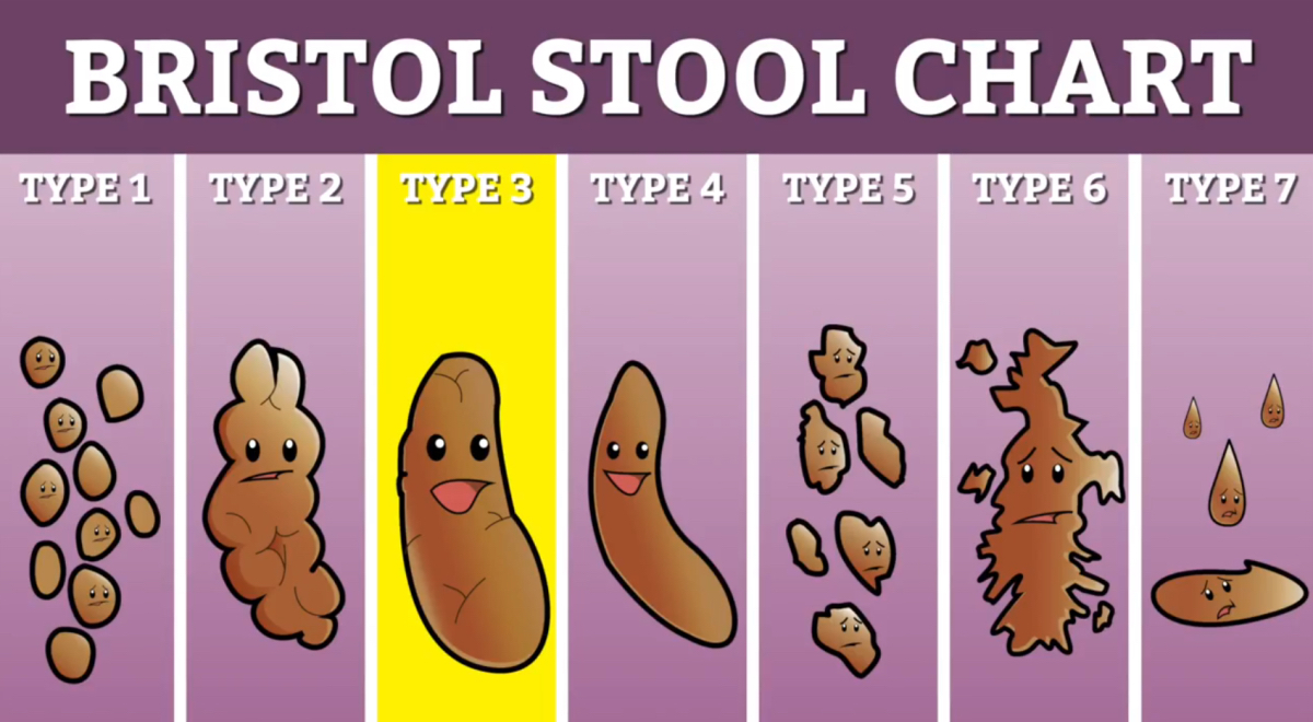 Bristol Stool Chart Vinyl Sticker Cartoon And 50 Similar Items