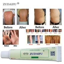1piece zudaifu Body Psoriasis Cream Psoriasis Ointment Facial Cleansing  - $3.40