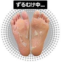 Sosu Perorin Foot Peeling Pack 4pcs - Mint image 3