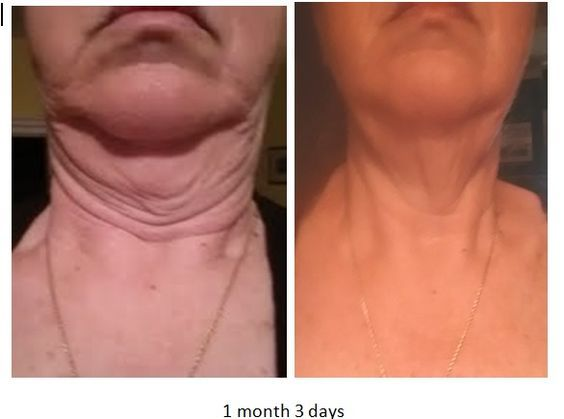 Look Younger Feel Beautiful Anti-Aging from the inside out Better Joint Mobility