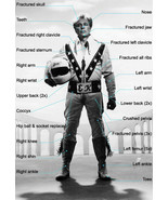 EVEL KNIEVEL 8X10 PHOTO PICTURE INJURY LIST WIDE BORDER - $3.95