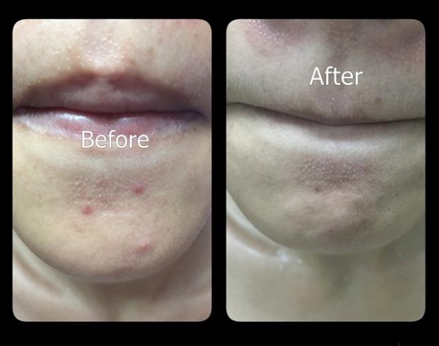 Argan Oil 100% Organic Anti-Oxidant, Anti-Aging, Hair Split End, Skin Moistur 5g