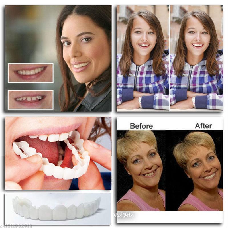 Instant Smile TOP Teeth MEDIUM W ONE EX PGK BEAD Veneer PERFECT PICTURE FAST