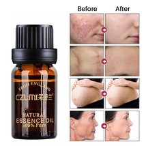 Stretch Marks Removal Oil Moisturizing Nourishing Lightening Pigment Sca... - $9.99