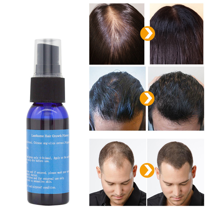 Y w f fast growth 30ml yuda pilatory spray anti baldness hair care hair loss treatment