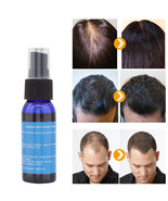 Y w f fast growth 30ml yuda pilatory spray anti baldness hair care hair loss treatment thumbtall